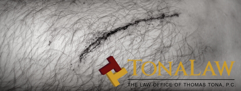 laceration-lawsuits